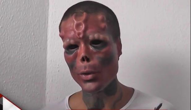 Dad Spends 163 30k On Surgery To Look Like Evil Nazi Supervillain Red Skull From Captain America